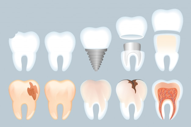 Realistic tooth structure illustration