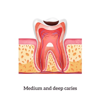 Реалистичная структура зуба со средним и глубоким кариесом