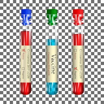 隔離された背景に血液とワクチンが入った現実的な透明な試験管、コロナウイルスの陽性および陰性試験(2019-ncov)