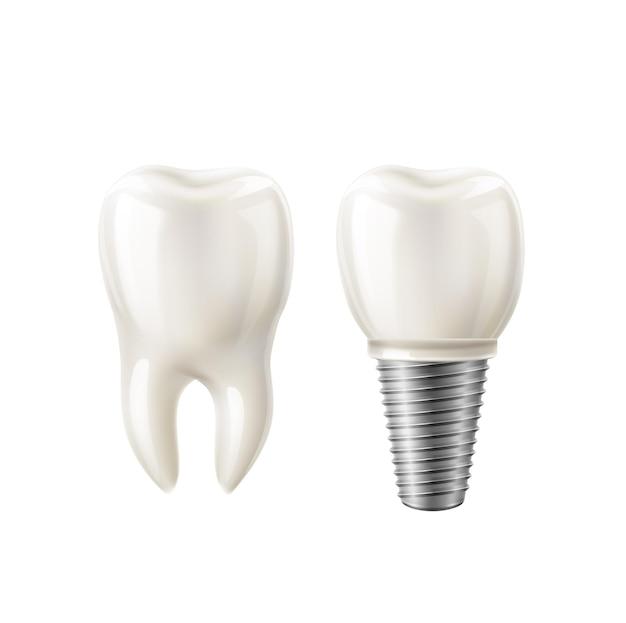 현실적인 하얀 치아와 치과 임플란트 세트.