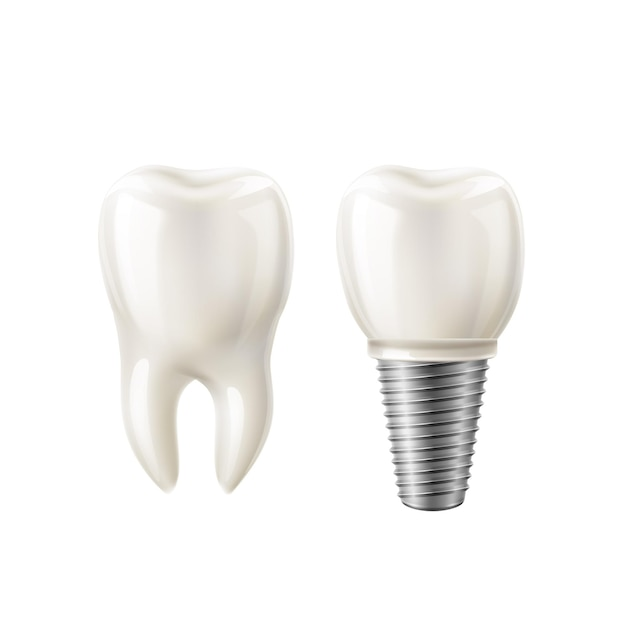 Realistic white tooth and dental implant  set.