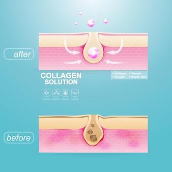 Восстановите слой кожи с коллагеном или фоном сыворотки для шаблона плаката