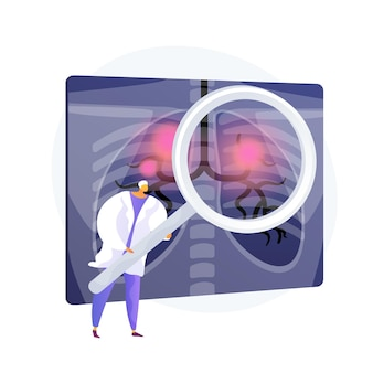 Respiratory disease, medical problem. lung cancer, bronchial asthma, pneumonia diagnosis. chest x ray scan with inflammations. radiology design element. vector isolated concept metaphor illustration