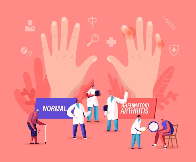 Rheumatoid arthritis concept. tiny doctor characters examine huge hand with joints disease and pathology, arms illness treatment, patient with diseased knee checkup. cartoon people vector illustration