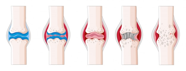 Rheumatoid arthritis in human body illustration