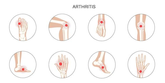 류마티스 관절염, 염증, 뼈 질환 개념.