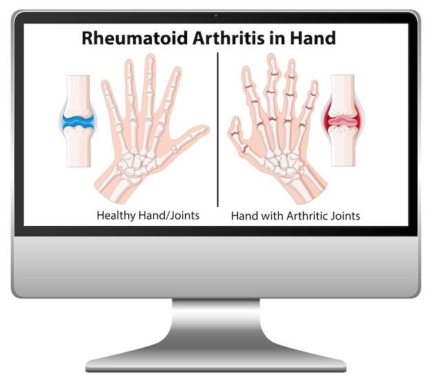 コンピューターのデスクトップに手元にある関節リウマチの症状 無料ベクター