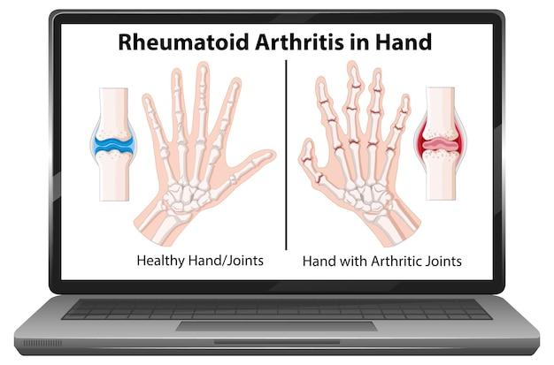 ノートパソコンの画面に手に関節リウマチの症状
