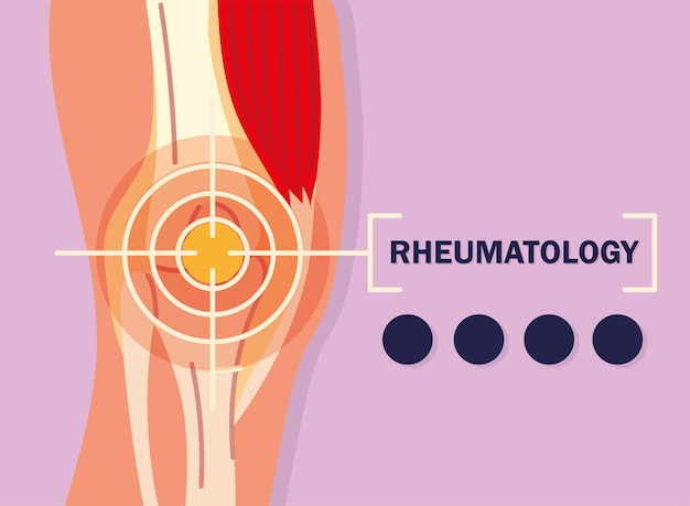 Rheumatology knee pain