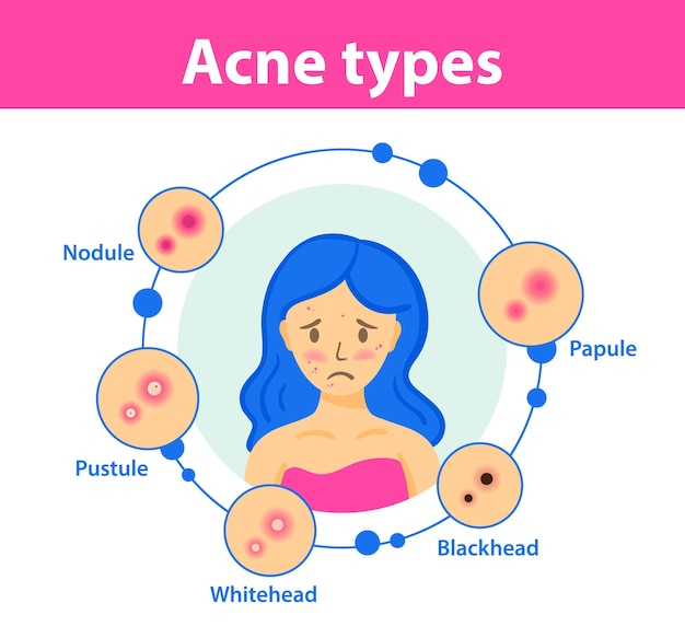 Sad girl with acne on face acne types