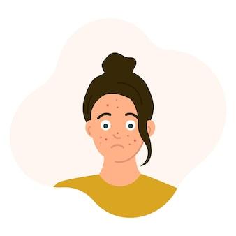 그녀의 얼굴 전환 연령 문제 피부 발진 벡터 일러스트 레이 션에 여드름과 슬픈 십 대 소녀