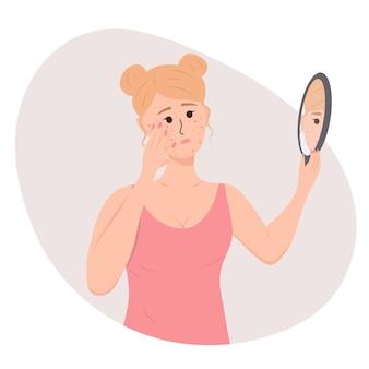 悲しい若い女性は鏡で彼女のにきびを見ていますにきびの問題を持つ人