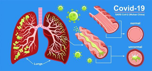 人間の肺。サル病、肺のコロナウイルス。コロナウイルスは、罹患した肺、痰、インフルエンザで重症のsarsを引き起こします。