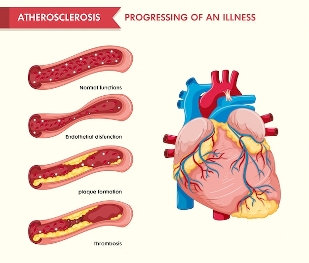 Scientific medical illustration of atherosclerosis