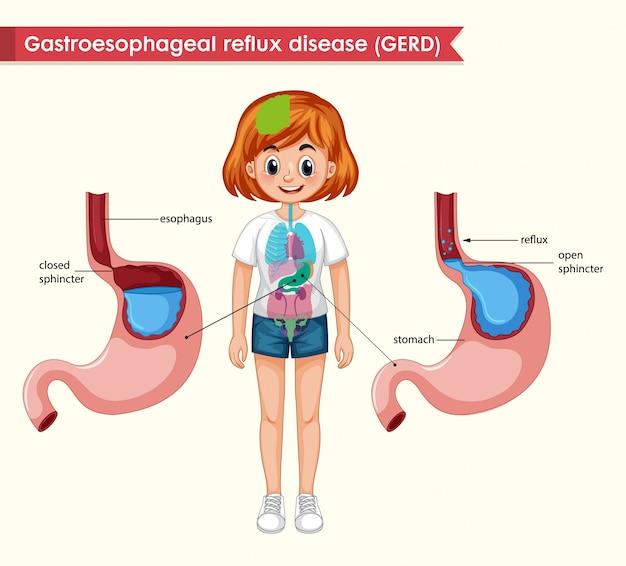 Scientific medical illustration of gerd
