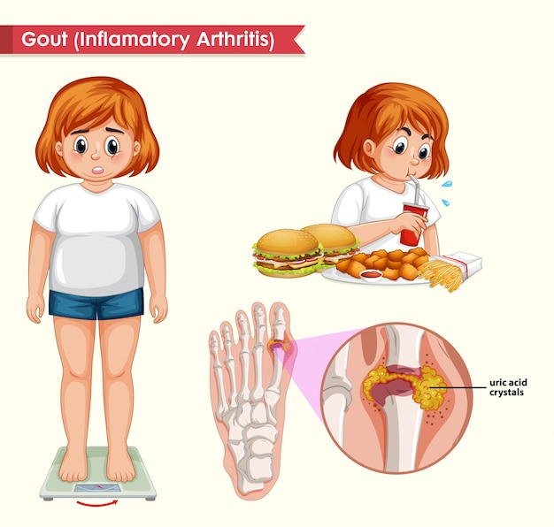 Scientific medical illustration of gout concept