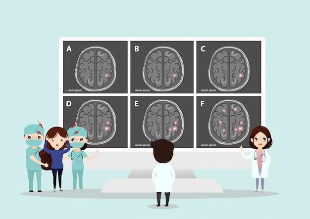 Scientific medical illustration of human brain stroke