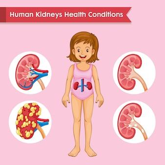腎臓の健康の科学的な医学的実例