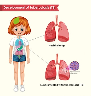 Scientific medical infographic of tuberculosis