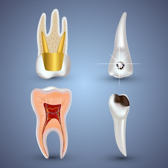 Set of 3d realistic clean and dirty tooth isolated  . dental health concept. oral care, teeth restoration