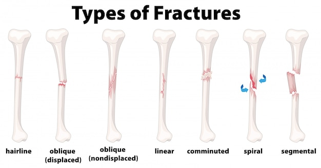 A set of bone fractures