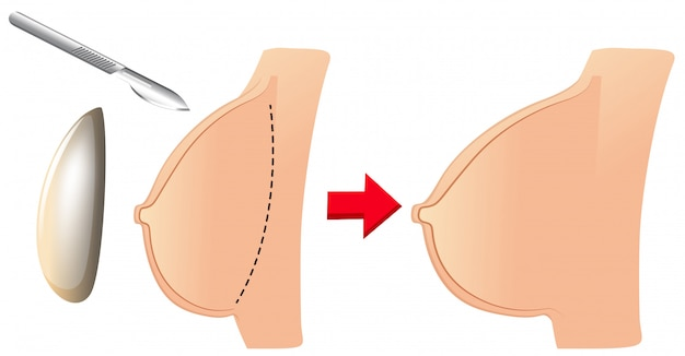 A set of breast augmentation