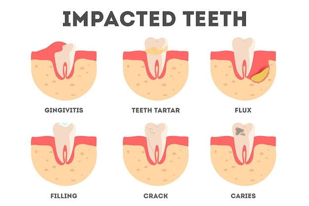 Set of diffrent impacts on human teeth. dental and oral diseases. idea of health and medical treatment.  illustration