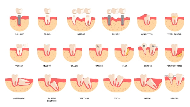 Set of human teeth in diffrent condition. dental health and disease concept. idea of oral health and medical treatment.  illustration