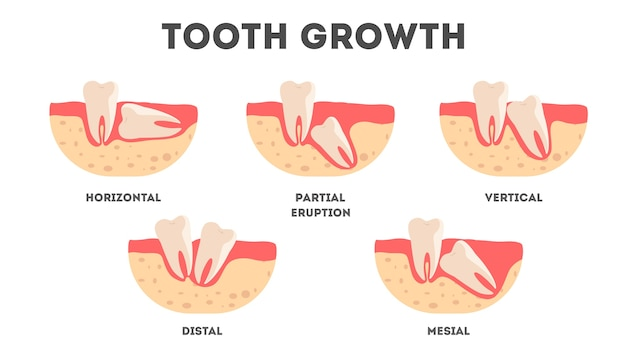 Set of human teeth in diffrent growing condition. tooth growing wrong way. idea of dental health and medical treatment.  illustration
