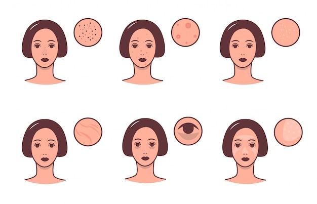 Набор женских лиц с различными состояниями кожи и проблемы. концепция ухода за кожей и дерматологии. красочная иллюстрация.