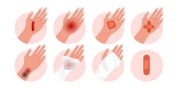 Set of physical injury human hand with contusion, bruise open cut, wounds isolated on a white background.