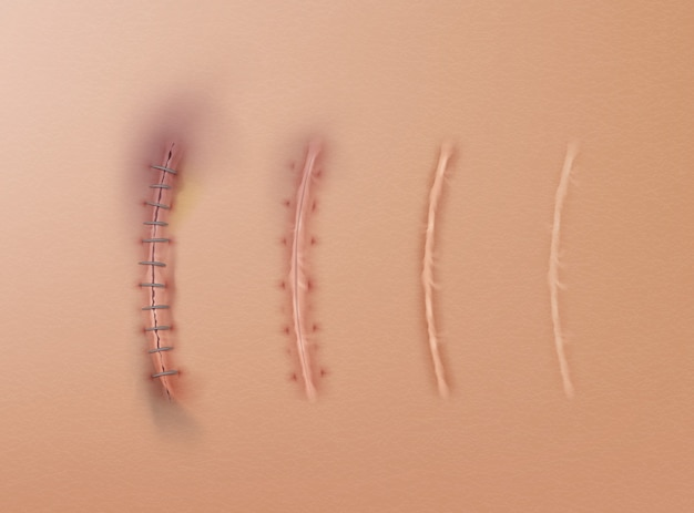 Set of surgical sutures and scars on skin stitched wounds at different healing stages