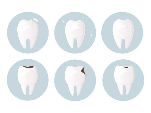 Set of teeth damaged by decay cracks and chips