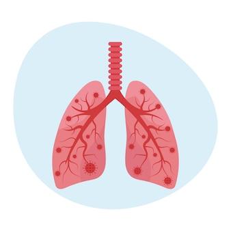Covid-19コロナウイルスによる肺の病気。肺炎を引き起こすウイルス。フラットスタイルのイラスト