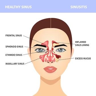 副鼻腔炎。健康で副鼻腔感染症、兆候、現実的