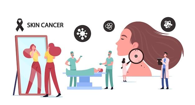 皮膚がんの概念。小さな医者の腫瘍学者のキャラクターは、巨大な拡大鏡で女性のほくろを調べます。外科医は病院で手術を行います。顔のあざを探している女の子。漫画の人々のベクトル図