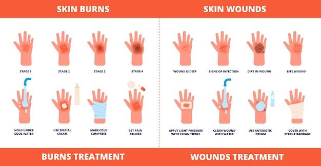 皮膚の応急処置。火傷の治療、傷、外傷の症状。