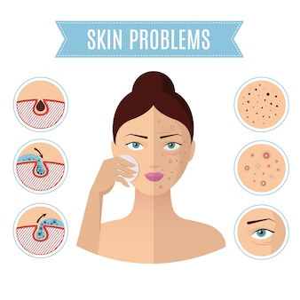 Skin problem solving, acne treatment and cleansing pore for perfect womans face icons