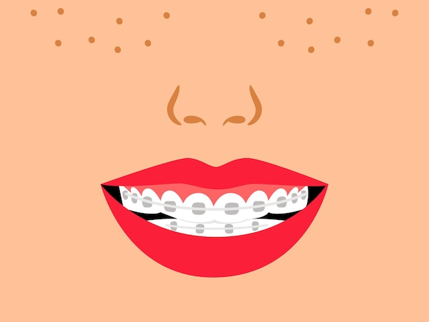Smile with dental braces. cartoon medical correct bite of teeth, vector illustration of orthodontic treatment for teeth in mouth by alignment