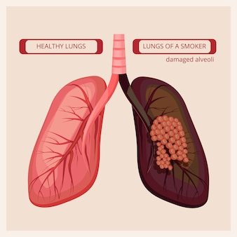 Smoker lungs. smoke human damage lung cancer vector medical infographic pictures