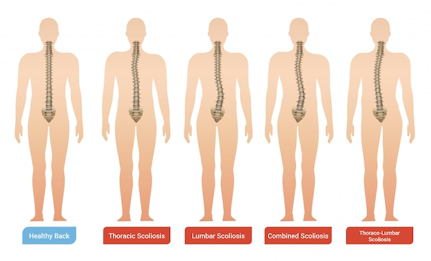 척추와 텍스트 인체의 실루엣으로 설정 척추 곡률 척추 측만증 의료 인포 그래픽 이미지