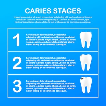 Stage of development of caries. dental care concept. healthy teeth.