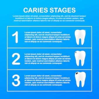 충치의 발달 단계. 치과 치료 개념. 건강한 치아.