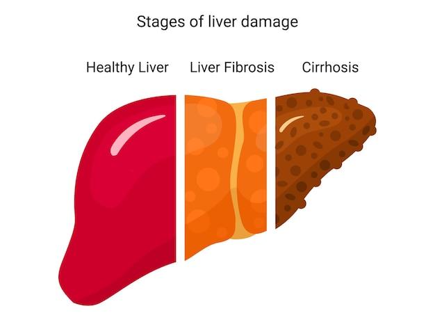 肝障害の段階。ポスター、インフォグラフィック、プレゼンテーションのデザイン。肝疾患