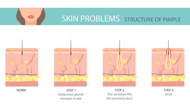 Stages of the acne formation on human skin.