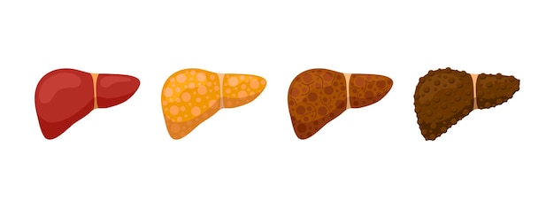 Stages human liver damage concept. healthy liver steatosis fatty nash fibrosis and cirrhosis. vector cartoon medical reversible and irreversible condition illustration