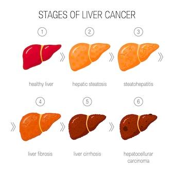 Stages of liver damage concept