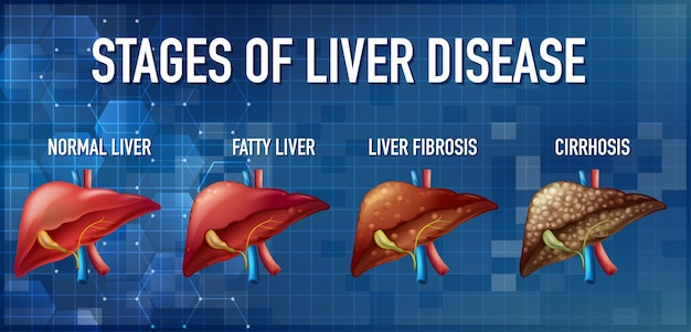 Stages of liver disease leading to cirrhosis