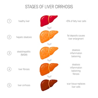 Stages of liver failure concept.  of healthy, fatty, nash, fibrotic and cirrhotic liver in flat style