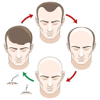탈모, 모발 치료 및 모발 이식 단계. 탈모, 대머리 및 관리, 건강 haor, 인간의 모발 성장, 벡터 일러스트 레이션